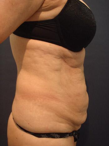 30 kg súlycsökkenés a hasplasztika után)